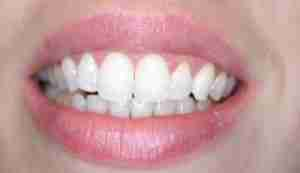 Dr. Rahimi Dental Smile Case 1 after