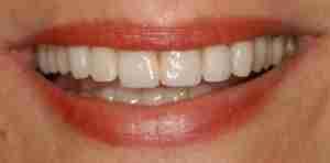 Dr. Rahimi Dental Smile Case 3 Implant after