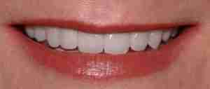 Dr. Rahimi Dental Smile Case 4 after