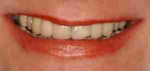 Dr. Rahimi Dental Smile Case 4 before